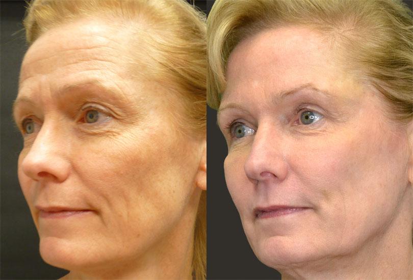 2526-before-after-laser-fillers-botox-upper-bleph-fat-grafting-side-2
