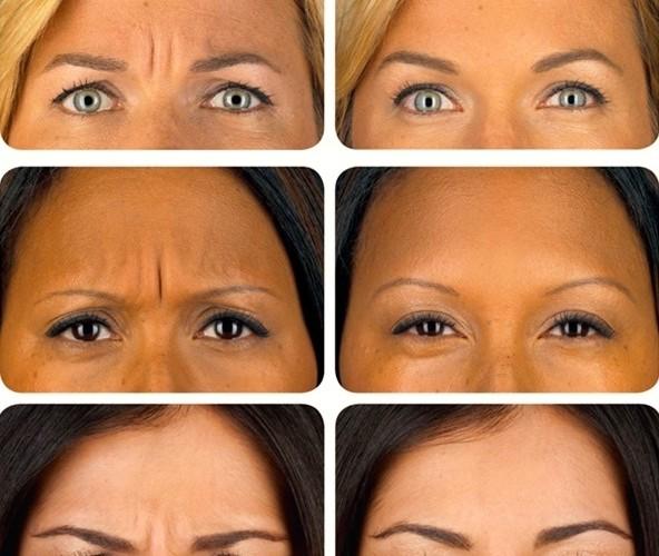 Botox-results-592×500