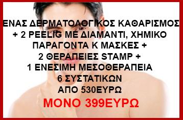 prosopa4A